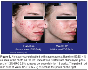 Patient.co.uk. Information about severe cystic acne.  Benzoyl peroxide can be<br /> combined with topical clindamycin or erythromycin in gel preparations. Topical&nbsp;