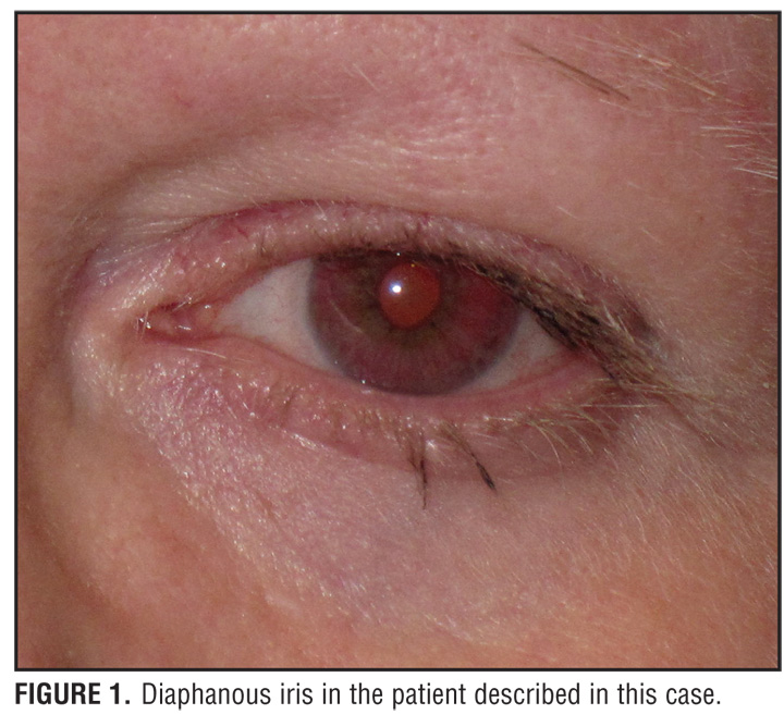 картинки hermansky-pudlak syndrome 2 - A Case of Hermansky-Pudlak Syndrome
