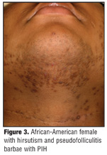 Clinical Features, and Treatment Options in Skin of Color