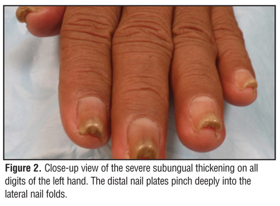 Acquired Pincer Nail Deformity Associated with Renal Failure