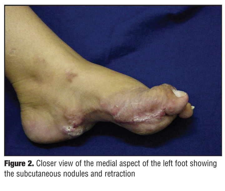 What is a good treatment for plantar fibroma?