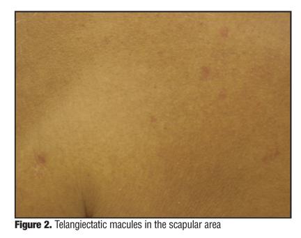 Ataxia - telangiectasia: MedlinePlus Medical Encyclopedia