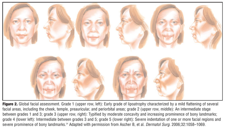 the nasolabial folds,